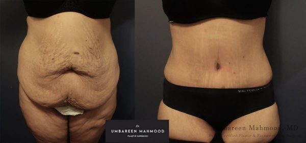 abdominoplasty-before-after-2