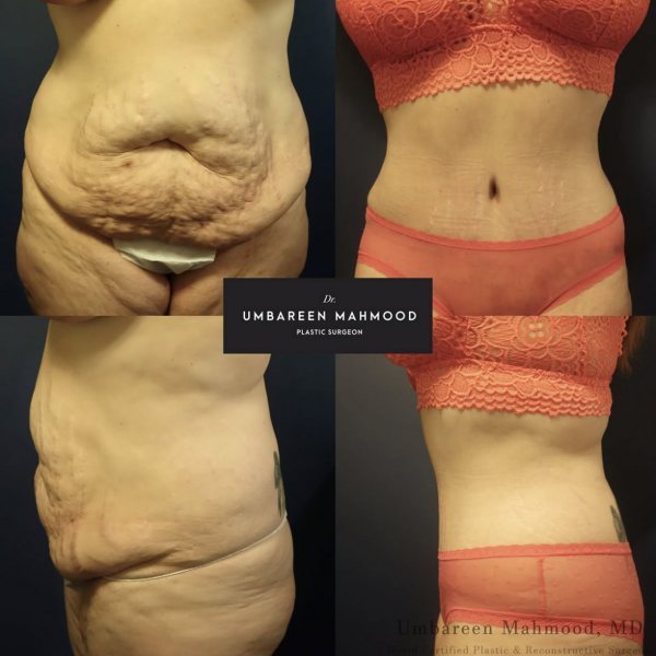 abdominoplasty-before-after-4