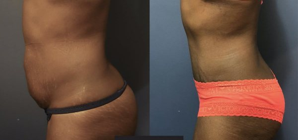 abdominoplasty-before-after-6