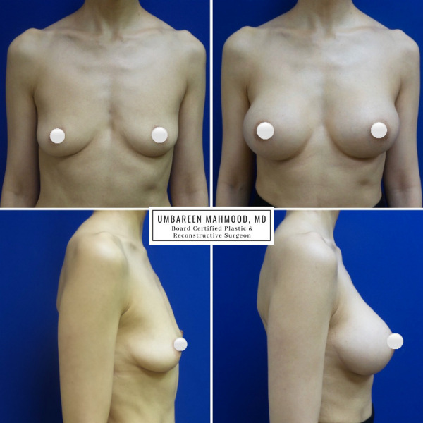 breast-augmentation-before-after-1
