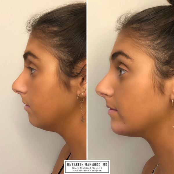 chin-filler-before-after-1