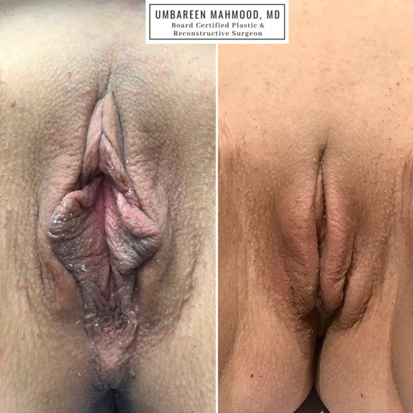 labiaplasty-before-after-2
