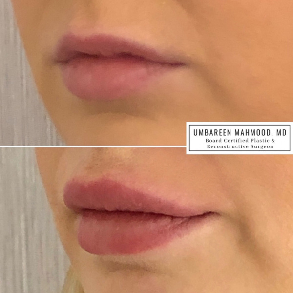 lip-augmentationbefore-after-3