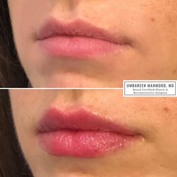 lip-filler-before-after-1