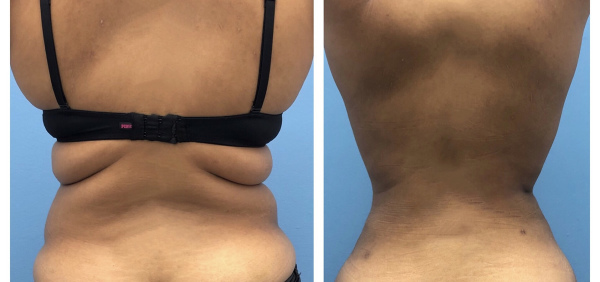 liposuction-before-after-1