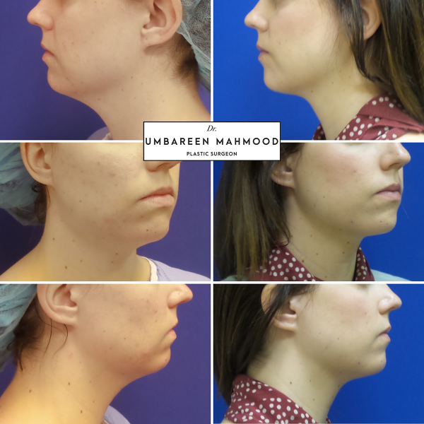 submental-liposuction-before-after-1