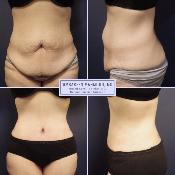 tummy-tuck-before-after-1